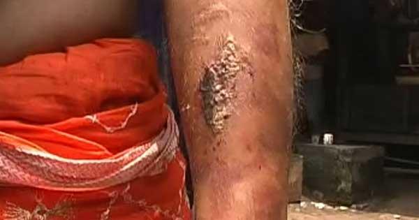 पत्नी को एसिड से किया घायल